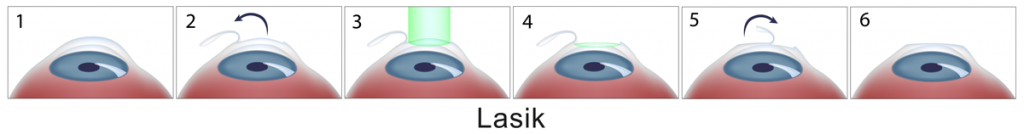 technique-lasik