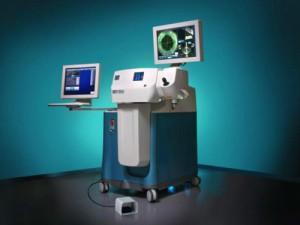 laser-cataracte1
