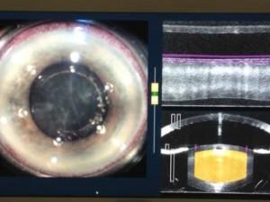 chirurgie-cataracte-laser1