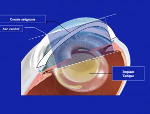 L'implant torique est en place dans son sac capsulaire; en étant positionné de manière précise, il compense à l'intérieur de l'œil le défaut  de courbure de la cornée